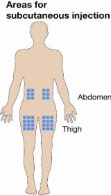 paralysie jambe tuberculose